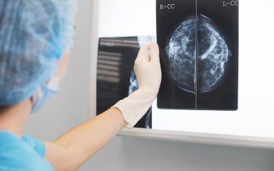 Early Breast Cancer Detection Saves Lives